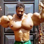 Top 5 Synthol Freak Bodybuilders That Will Blow Your Mind