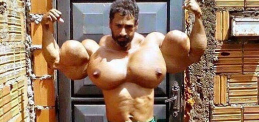 Synthol bodybuilder
