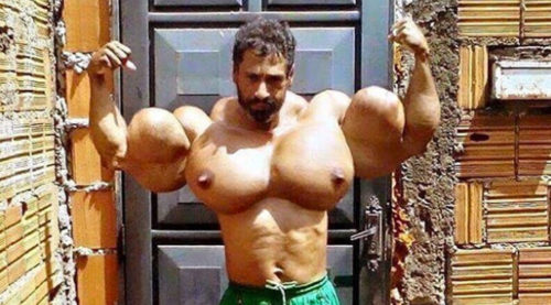 Synthol bodybuilder